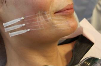 لیفت صورت با نخ لیفتینگ | هزینه لیفت صورت با نخ,دکتر متخصص پوست